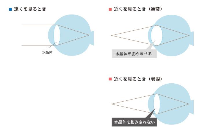 老眼の水晶体図